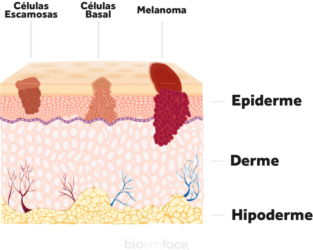 Esquema câncer de pele