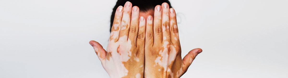HLA vitiligo